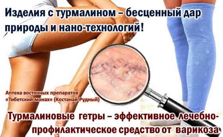 Тромбофлебит бедренной вены симптомы